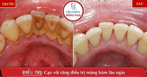 trước và sau khi cạo vôi răng