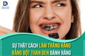 Sự thật cách làm trắng răng bằng bột than đen đánh răng