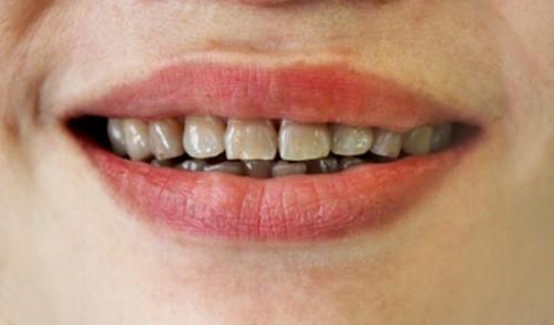 răng bị nhiễm kháng sinh