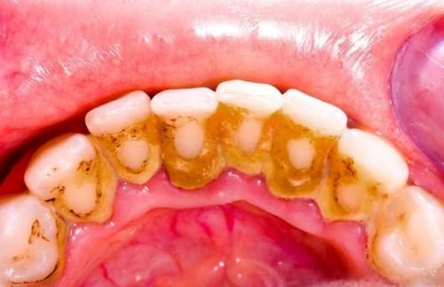 vôi răng bám lâu ngày
