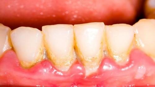 vôi răng gây viêm nướu