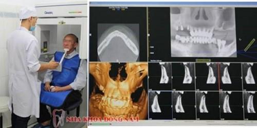 chụp CT kiểm tra xương hàm