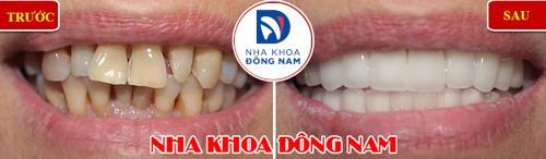 bọc sứ chỉnh răng mọc lệch