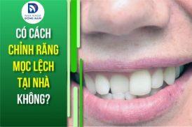 Có cách chỉnh răng mọc lệch tại nhà không?