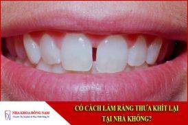 Có cách làm răng thưa khít lại tại nhà không?