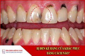 Bị đen kẽ răng cửa chữa bằng cách nào?