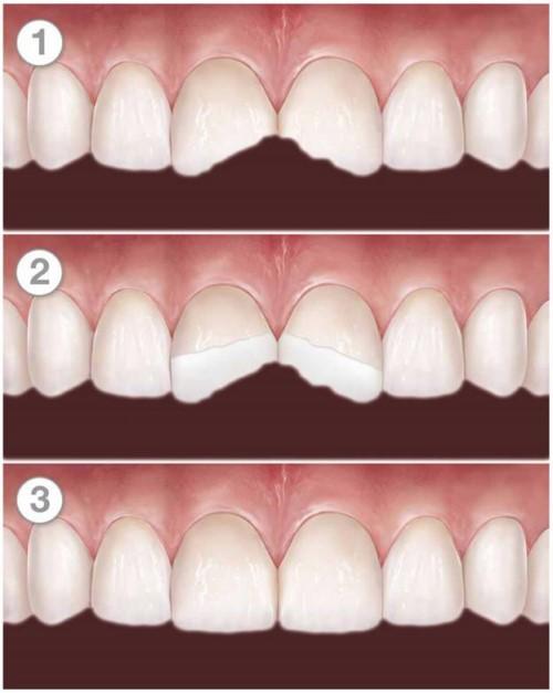 mô phỏng trám răng cửa