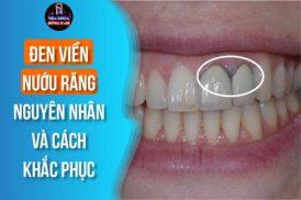Đen viền nướu răng: Nguyên nhân và cách khắc phục