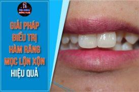 Giải pháp điều trị hàm răng mọc lộn xộn hiệu quả