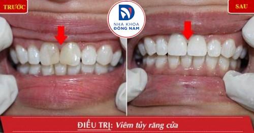 điều trị viêm tủy răng cửa