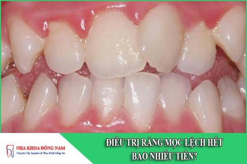 Điều trị răng mọc lệch hết bao nhiêu tiền?