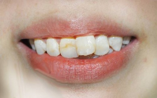 răng mọc lệch