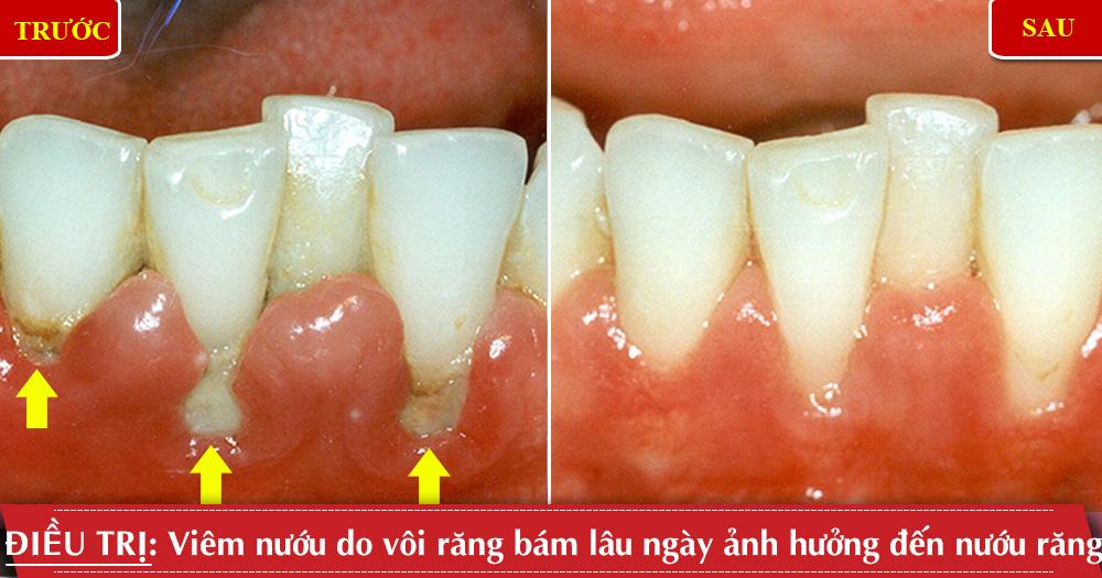Điều trị viêm nướu tại nha khoa Đông Nam