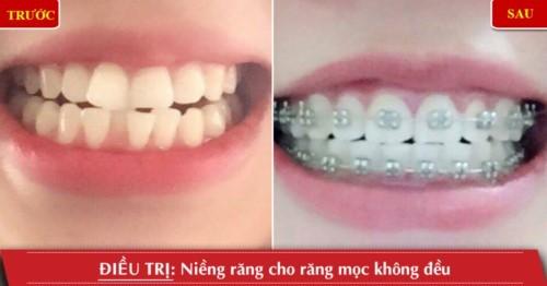 niềng răng mọc không đều