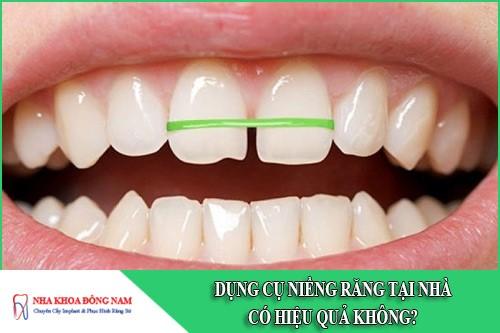 Dụng cụ niềng răng tại nhà có hiệu quả không?