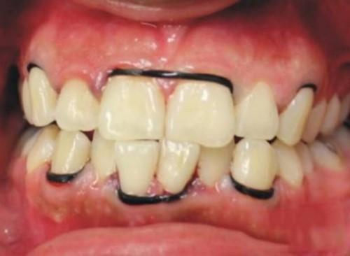 tác hại của tự niềng răng tại nhà