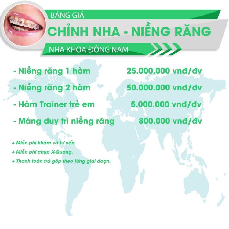 bảng giá niềng răng