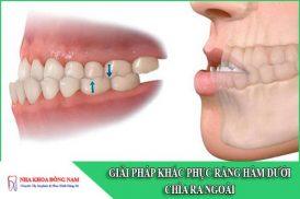 Giải pháp khắc phục hàm răng dưới chìa ra ngoài