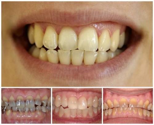 các trường hợp răng nhiễm màu
