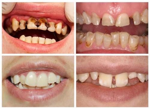 răng bị khiếm khuyết về hình dáng