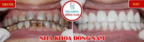 bọc sứ cho răng nhiễm kháng sinh