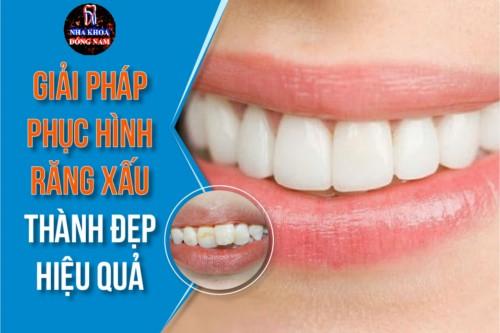 Giải pháp phục hình răng xấu thành đẹp hiệu quả