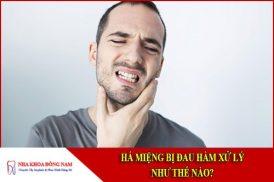 Há miệng bị đau hàm xử lý như thế nào?