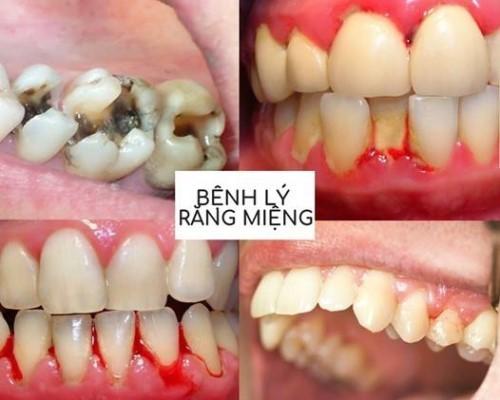 các bệnh lý răng miệng