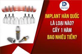 Implant Hàn Quốc là loại nào? Cấy 1 hàm bao nhiêu tiền?