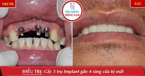 Cấy ghép 3 trụ implant gắn 4 răng cửa