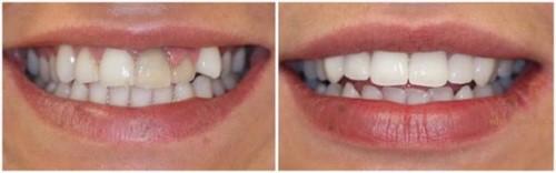 răng khểnh sứ