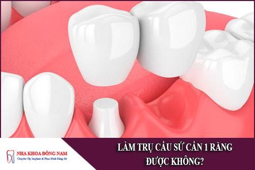 Làm trụ cầu sứ cần 1 răng được không?