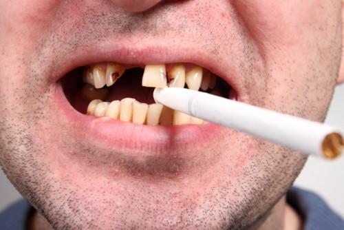 tác hại của thuốc lá với răng miệng