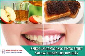 3 Mẹo làm trắng răng trong 5 phút với các nguyên liệu đơn giản