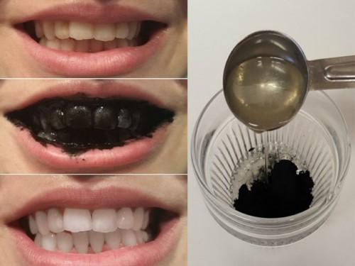 làm trắng răng với than hoạt tính