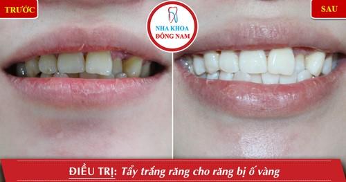 tẩy trắng răng bị ố vàng