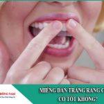 Miếng dán trắng răng Crest có tốt không?