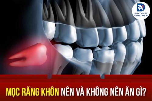 Mọc răng khôn nên và không nên ăn gì?