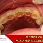 Mòn men răng: Nguyên nhân và cách khắc phục
