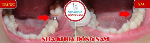 trồng 1 trụ implant cho răng hàm dưới