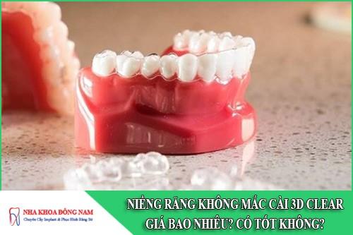 Niềng răng không mắc cài 3D Clear giá bao nhiêu? Có tốt không?