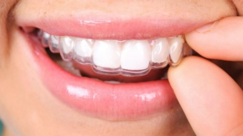 ưu điểm cửa niềng răng không mắc cài