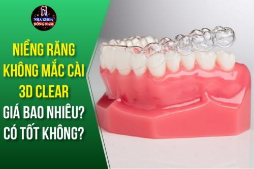 Niềng răng 3D Clear giá bao nhiêu? Có tốt không?