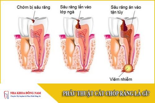 Phẫu thuật cắt chóp răng là gì?