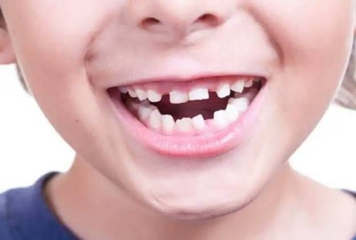 răng bé bị thưa, không đều