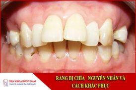 Răng bị chìa - Nguyên nhân và các cách khắc phục
