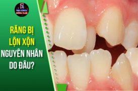 Răng bị lộn xộn nguyên nhân do đâu