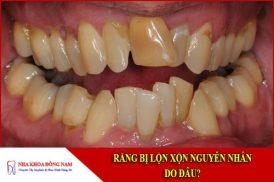 Răng bị lộn xộn nguyên nhân do đâu?