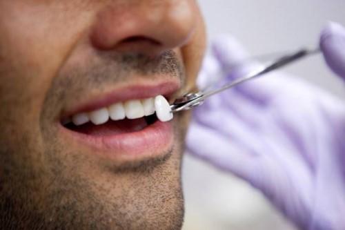 bọc sứ cho răng lung lay nhẹ