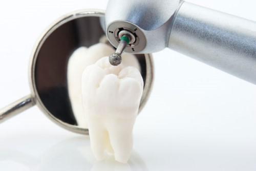 nhổ răng lung lay